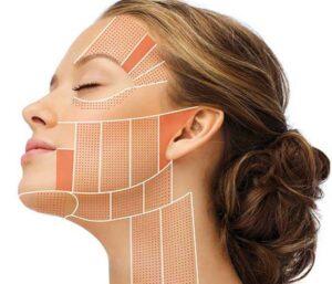 Hifu huidverzorging