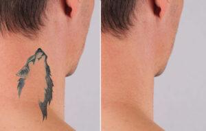 tattoo laser accessoires