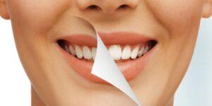 Startpakket tanden bleken